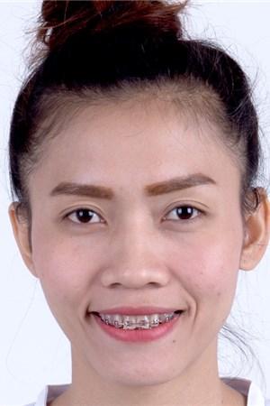 Maliwan Prabnarong